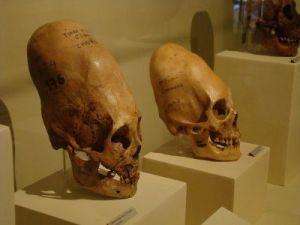 elongated_skull_side.png